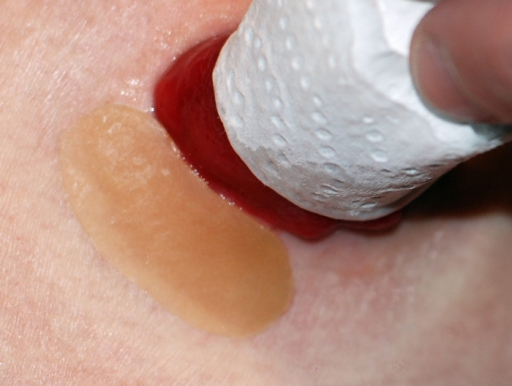 A small piece of Duoderm Signal adds another layer of protection for my skin. I put the Duoderm under my Eakin barrier ring. Both of these things then go under my wafer.